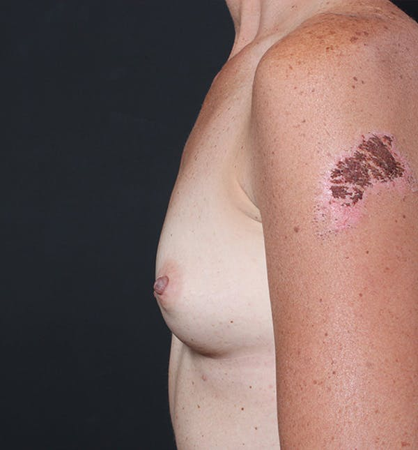 Breast Augmentation Gallery - Patient 14089658 - Image 9