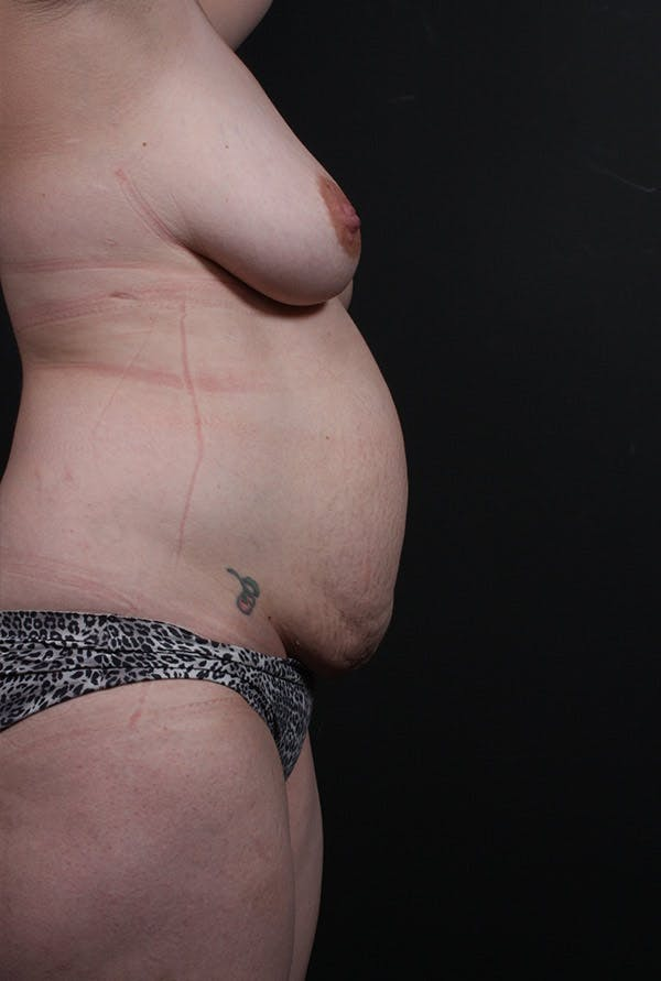 Mommy Makeover Gallery - Patient 14089660 - Image 5