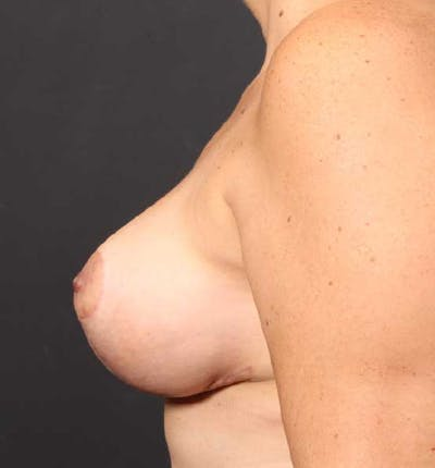 Breast Reduction Gallery - Patient 14089661 - Image 6