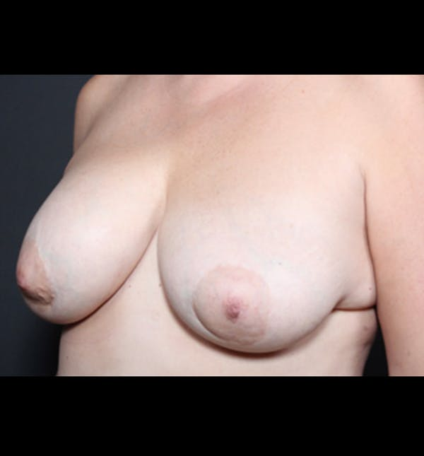 Breast Implant Revision Gallery - Patient 14089668 - Image 1
