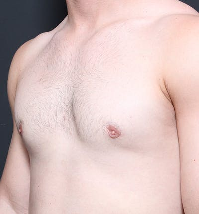 Male Chest Reduction Gallery - Patient 14089664 - Image 2