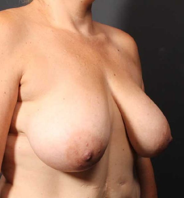 Breast Reduction Gallery - Patient 14089661 - Image 7