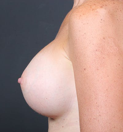 Breast Augmentation Gallery - Patient 14089658 - Image 10