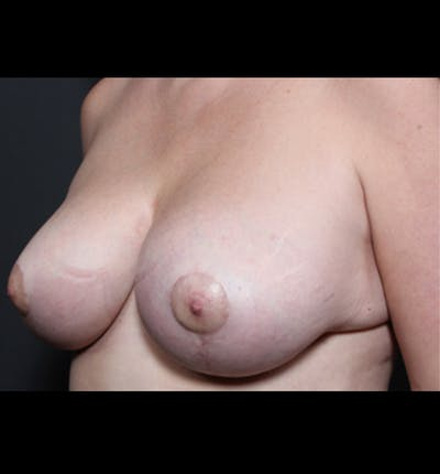 Breast Implant Revision Gallery - Patient 14089668 - Image 2