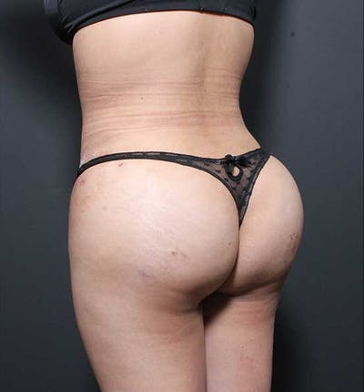 Brazilian Butt Lift Gallery - Patient 14089674 - Image 2