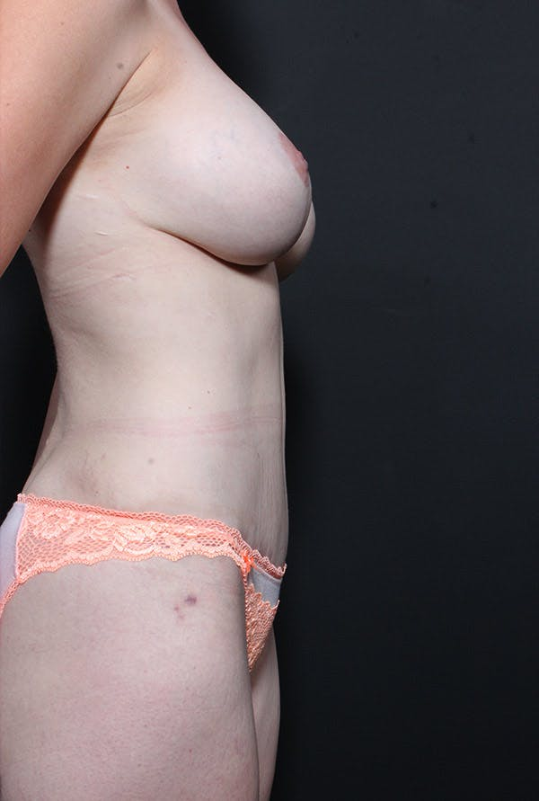 Mommy Makeover Gallery - Patient 14089660 - Image 6
