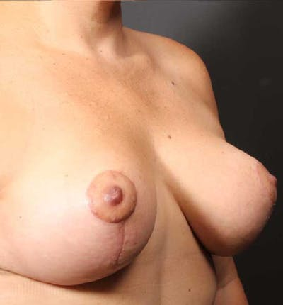 Breast Reduction Gallery - Patient 14089661 - Image 8