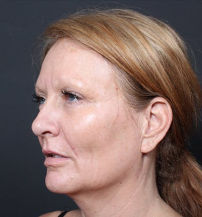 Injectables Gallery - Patient 14089671 - Image 1