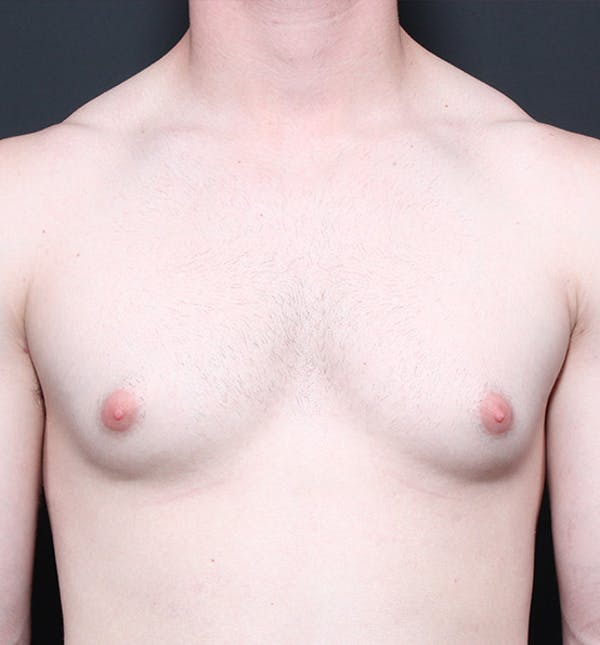 Male Chest Reduction Gallery - Patient 14089664 - Image 3
