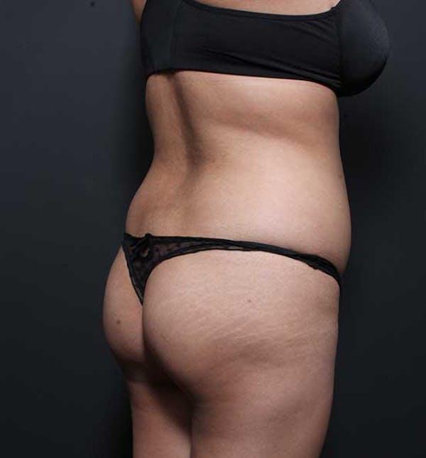 Brazilian Butt Lift Gallery - Patient 14089674 - Image 3