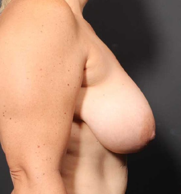 Breast Reduction Gallery - Patient 14089661 - Image 9