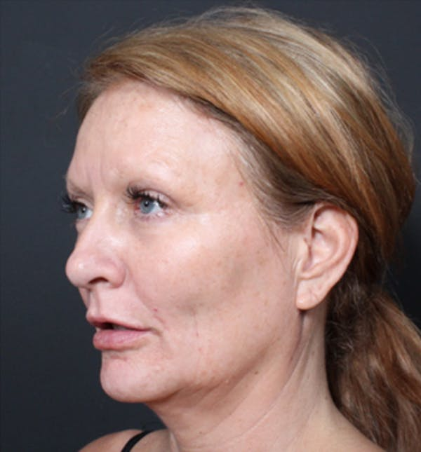 Injectables Gallery - Patient 14089671 - Image 2