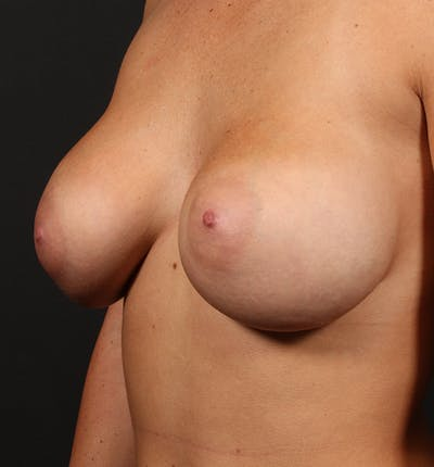 Breast Augmentation Gallery - Patient 14089670 - Image 1