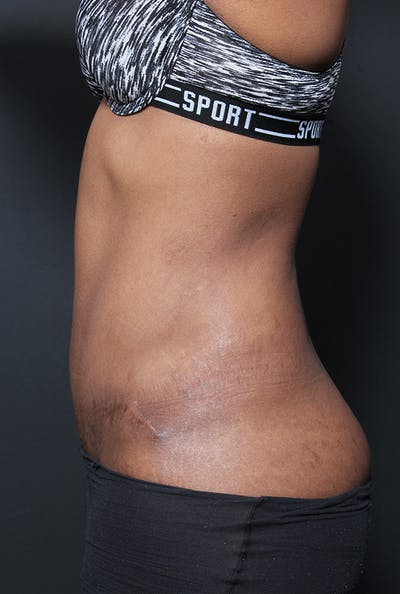 Tummy Tuck Gallery - Patient 14089669 - Image 6