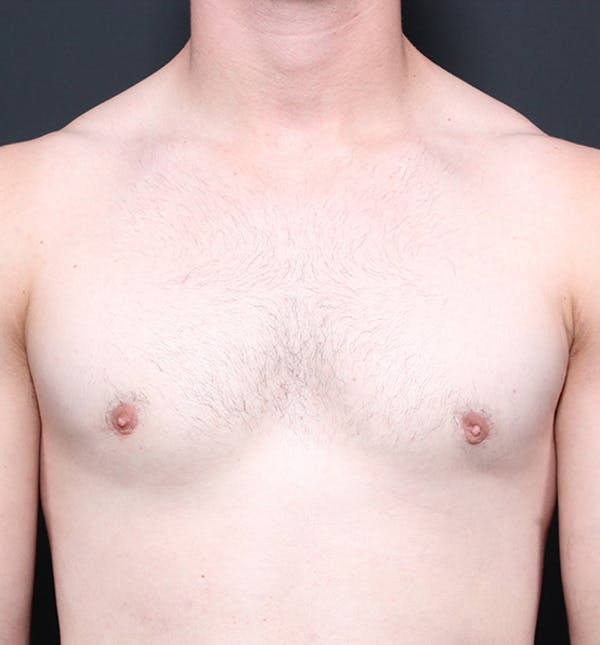Male Chest Reduction Gallery - Patient 14089664 - Image 4