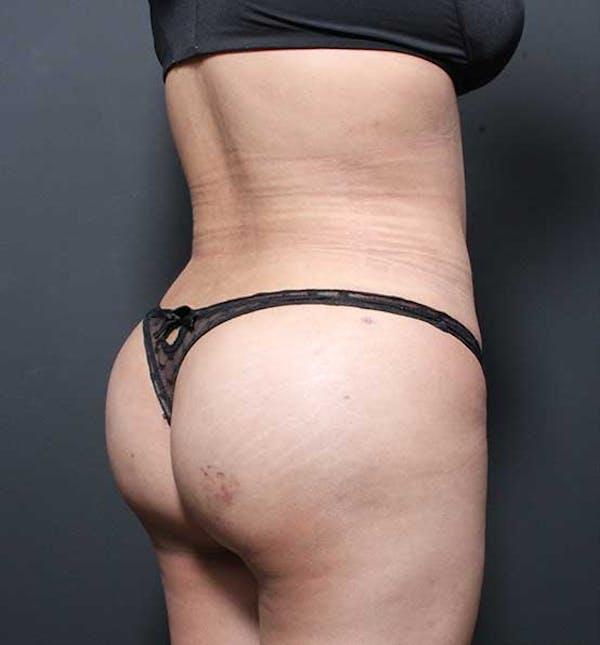 Brazilian Butt Lift Gallery - Patient 14089674 - Image 4
