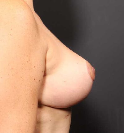 Breast Reduction Gallery - Patient 14089661 - Image 10