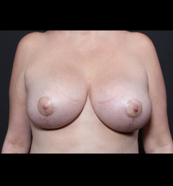 Breast Implant Revision Gallery - Patient 14089668 - Image 4