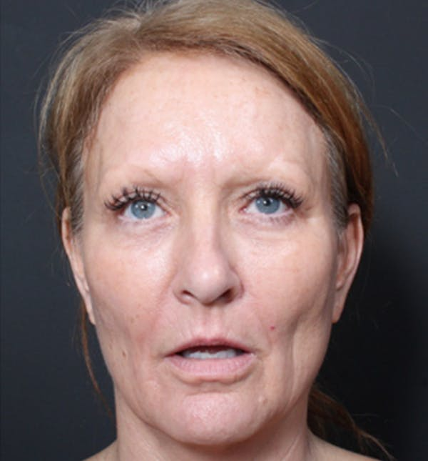 Injectables Gallery - Patient 14089671 - Image 3