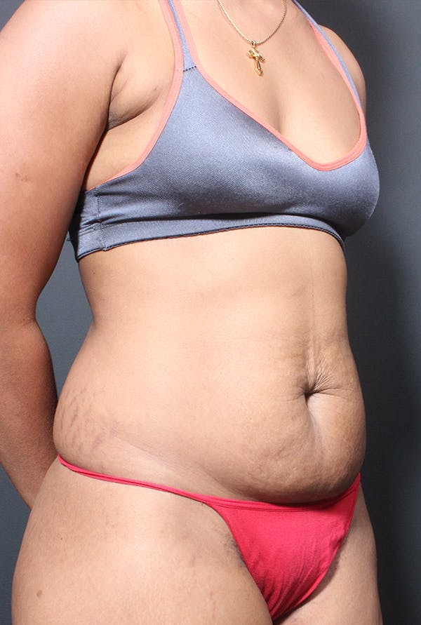Tummy Tuck Gallery - Patient 14089669 - Image 7