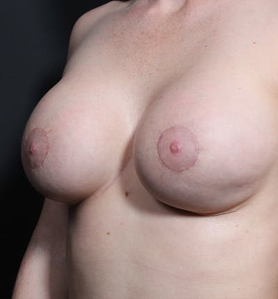 Breast Augmentation Gallery - Patient 14089670 - Image 2