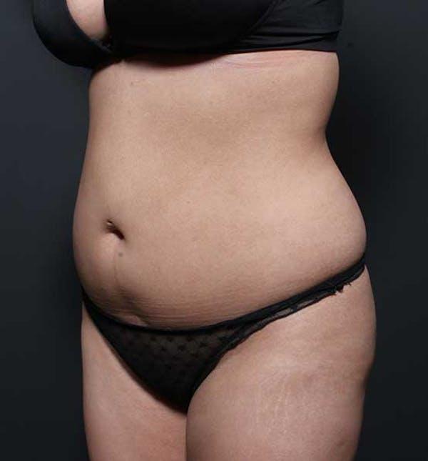 Brazilian Butt Lift Gallery - Patient 14089674 - Image 5