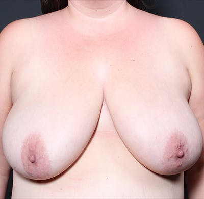 Breast Lift Mastopexy Gallery - Patient 14089666 - Image 1