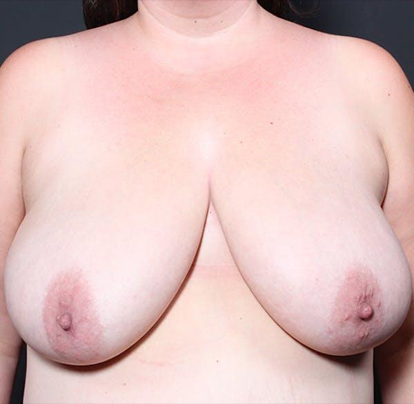 Breast Lift Mastopexy Gallery - Patient 14089666 - Image 1