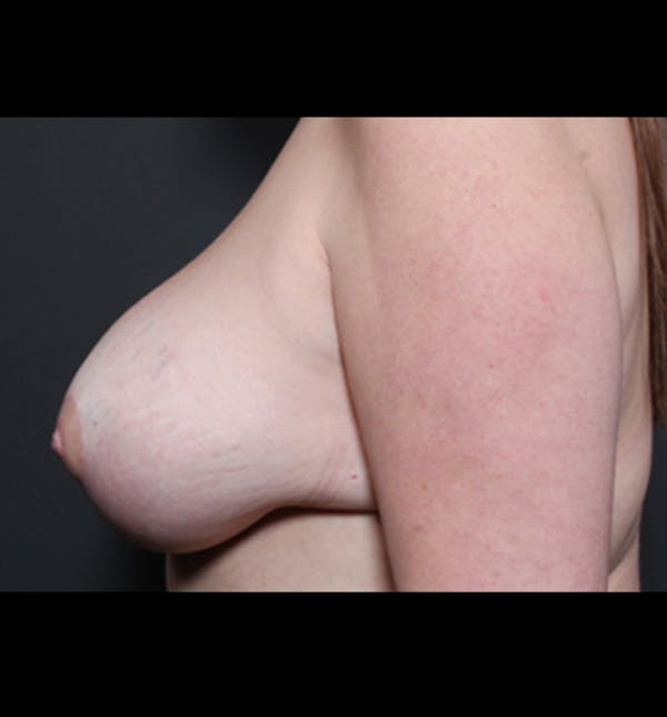 Breast Implant Revision Gallery - Patient 14089668 - Image 6
