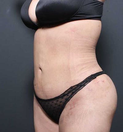 Brazilian Butt Lift Gallery - Patient 14089674 - Image 6