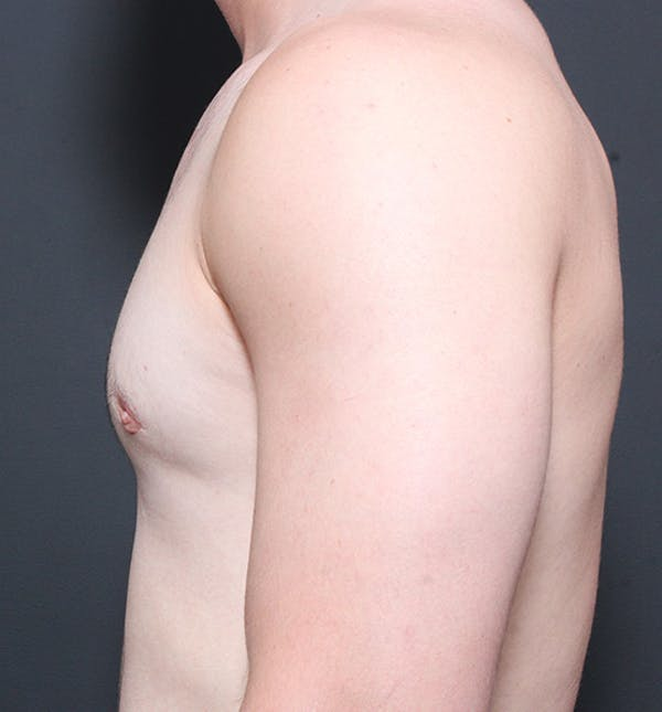 Male Chest Reduction Gallery - Patient 14089664 - Image 6