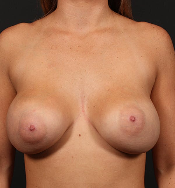 Breast Augmentation Gallery - Patient 14089670 - Image 3