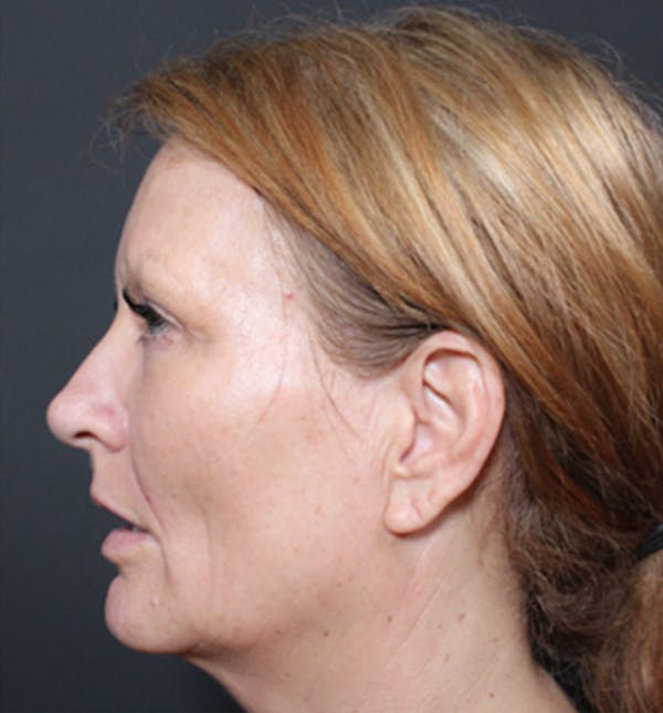 Injectables Gallery - Patient 14089671 - Image 5