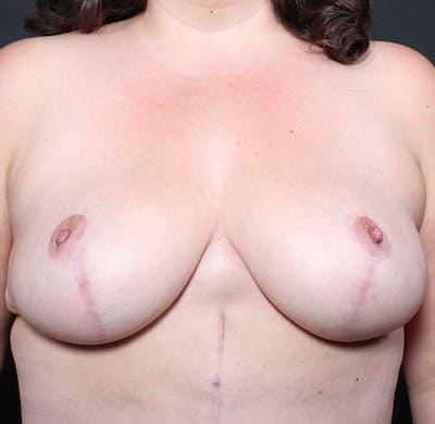 Breast Lift Mastopexy Gallery - Patient 14089666 - Image 2