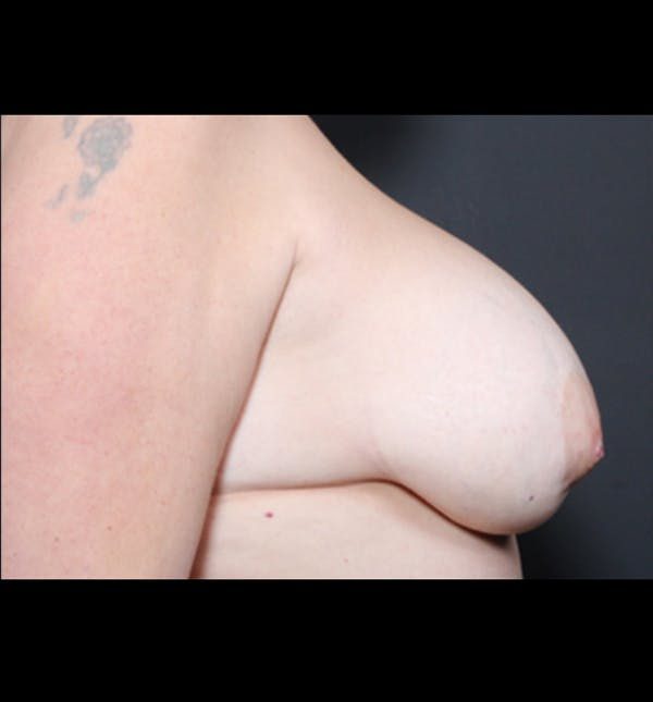 Breast Implant Revision Gallery - Patient 14089668 - Image 7