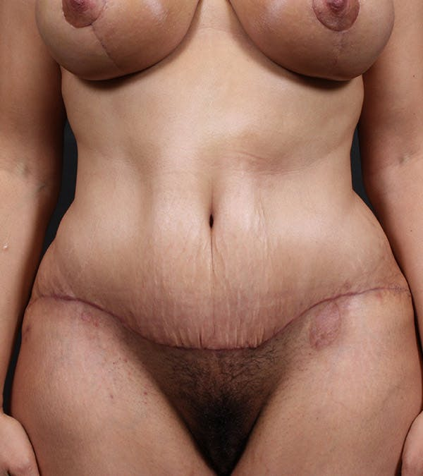 Mommy Makeover Gallery - Patient 14089667 - Image 4