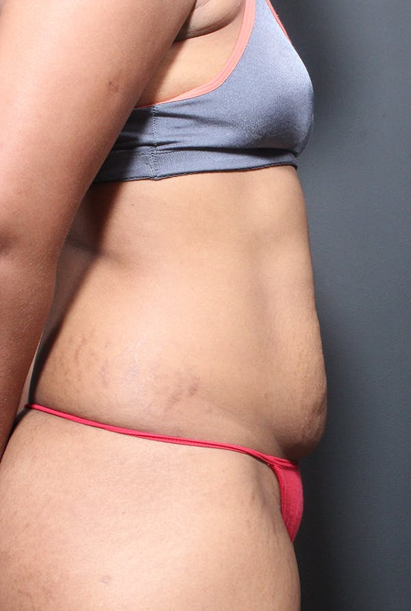 Tummy Tuck Gallery - Patient 14089669 - Image 9