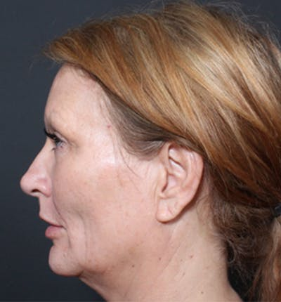 Injectables Gallery - Patient 14089671 - Image 6