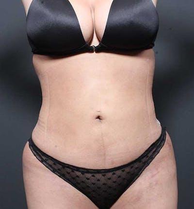 Brazilian Butt Lift Gallery - Patient 14089674 - Image 8