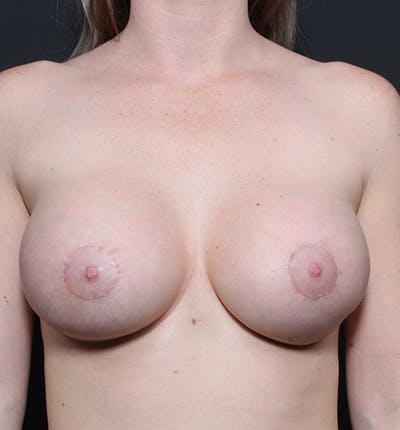 Breast Augmentation Gallery - Patient 14089670 - Image 4