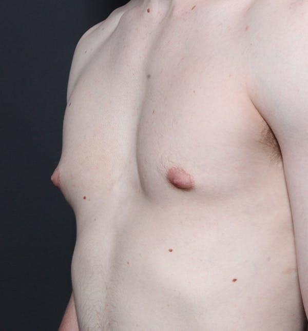 Male Chest Reduction Gallery - Patient 14089676 - Image 1