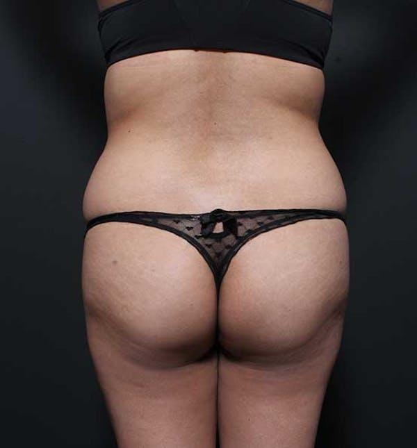 Brazilian Butt Lift Gallery - Patient 14089674 - Image 9