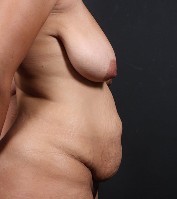 Mommy Makeover Gallery - Patient 14089667 - Image 5