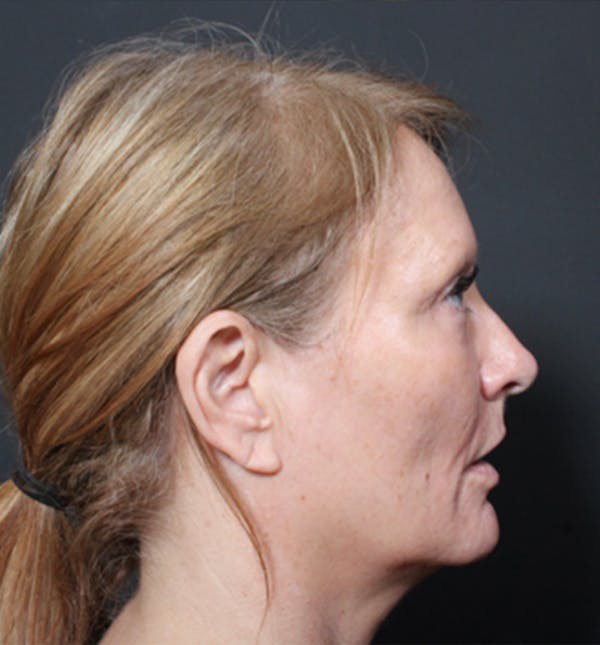 Injectables Gallery - Patient 14089671 - Image 7