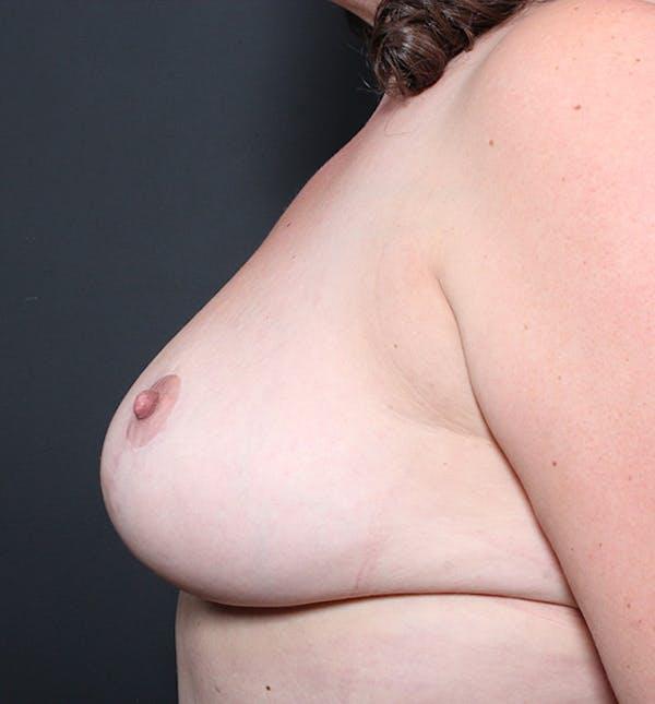Breast Lift Mastopexy Gallery - Patient 14089666 - Image 4