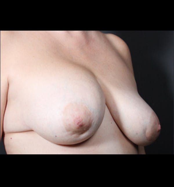 Breast Implant Revision Gallery - Patient 14089668 - Image 9
