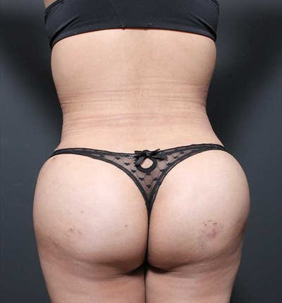 Brazilian Butt Lift Gallery - Patient 14089674 - Image 10