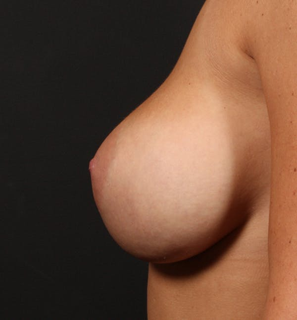 Breast Augmentation Gallery - Patient 14089670 - Image 5