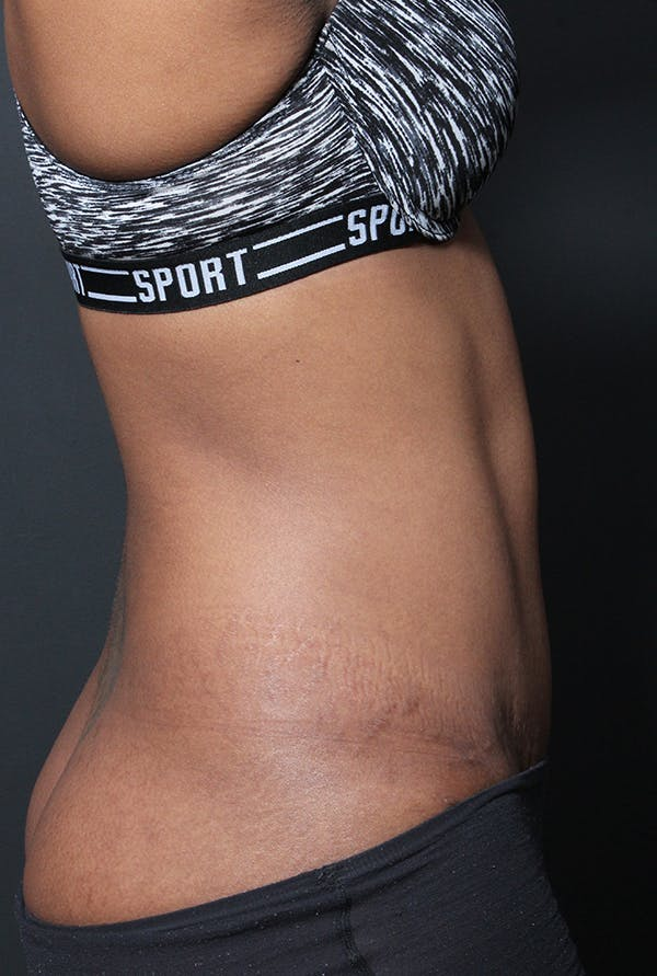 Tummy Tuck Gallery - Patient 14089669 - Image 10