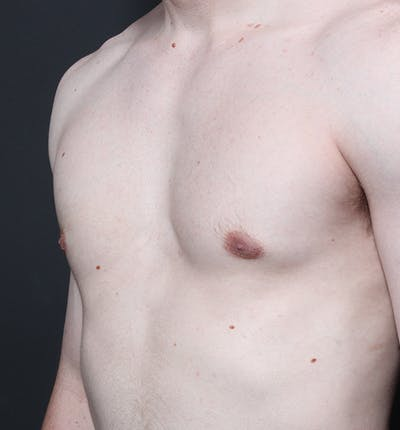 Male Chest Reduction Gallery - Patient 14089676 - Image 2